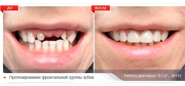 protezirovaniye zubov