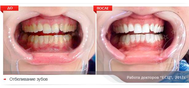 otbelivaniye zubov