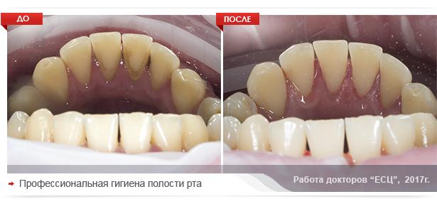 gigiena