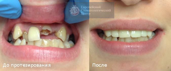 ортопедическая стоматология в екатеринбурге