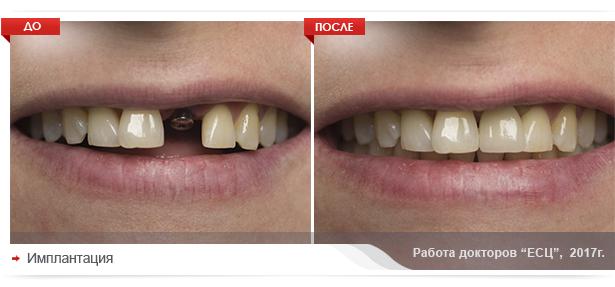 Имплантация зубов в Екатеринбурге