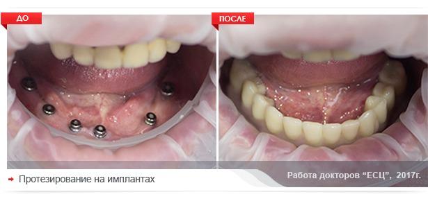 proyezirovanie-na-implantah