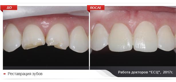 restvraciya-zubov